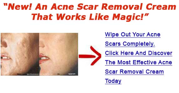 Face Acne Scar Removal Cream For Removing Acne Scars Hints To