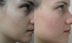 removal of pimple scars