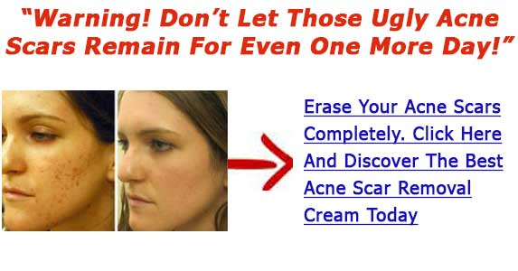 Best Mark Cream For Acne Cream For Removing Acne Scars Hints